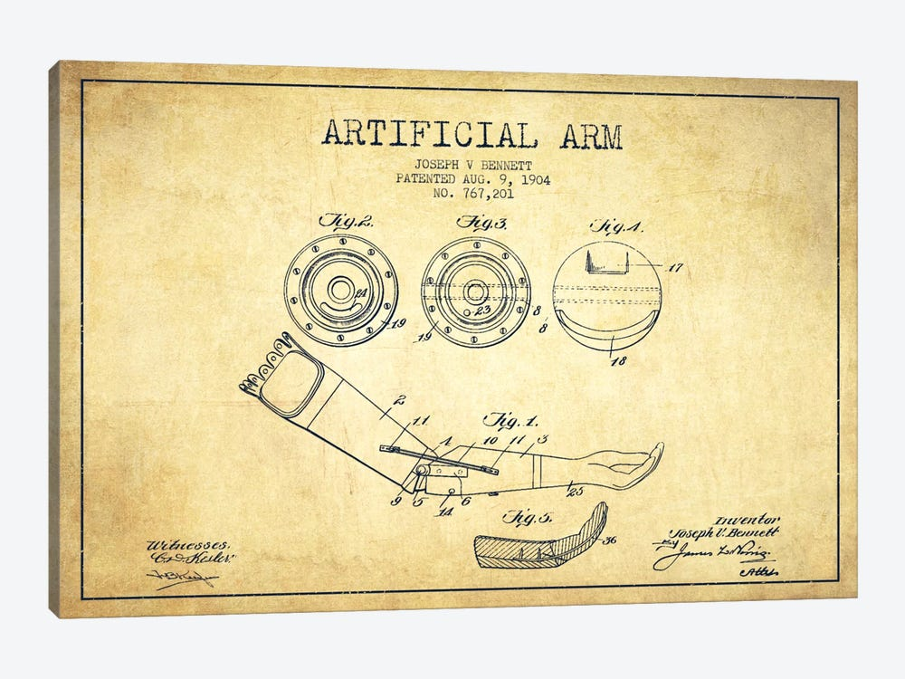 Artificial Arm Vintage Patent Blueprint by Aged Pixel 1-piece Art Print