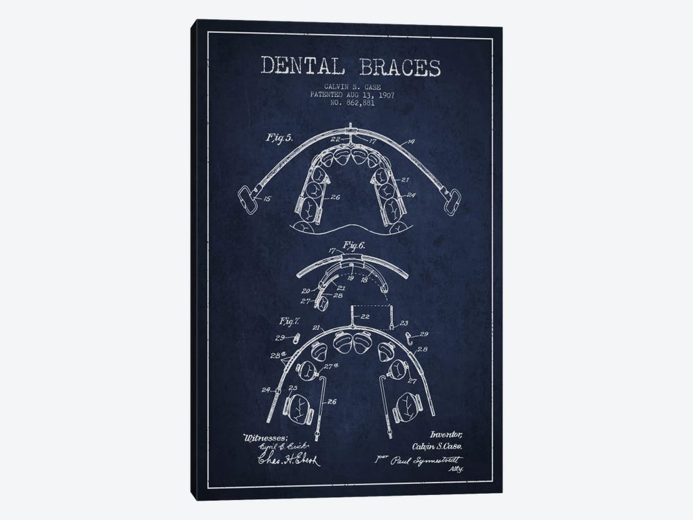 Dental Braces Navy Blue Patent Blueprint by Aged Pixel 1-piece Canvas Artwork