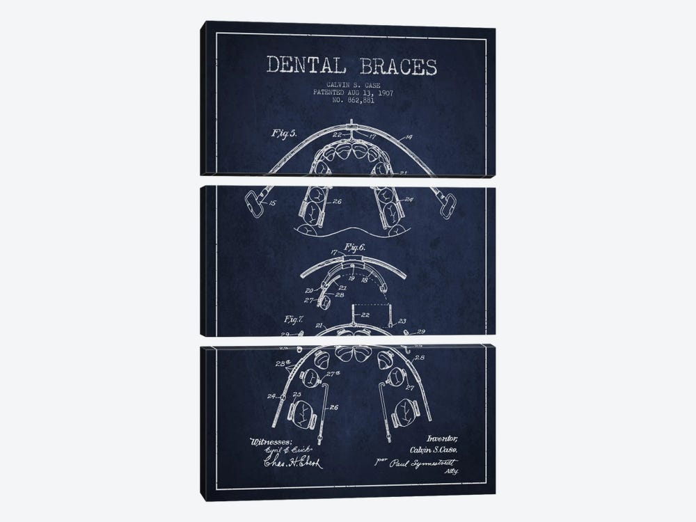 Dental Braces Navy Blue Patent Blueprint by Aged Pixel 3-piece Canvas Art