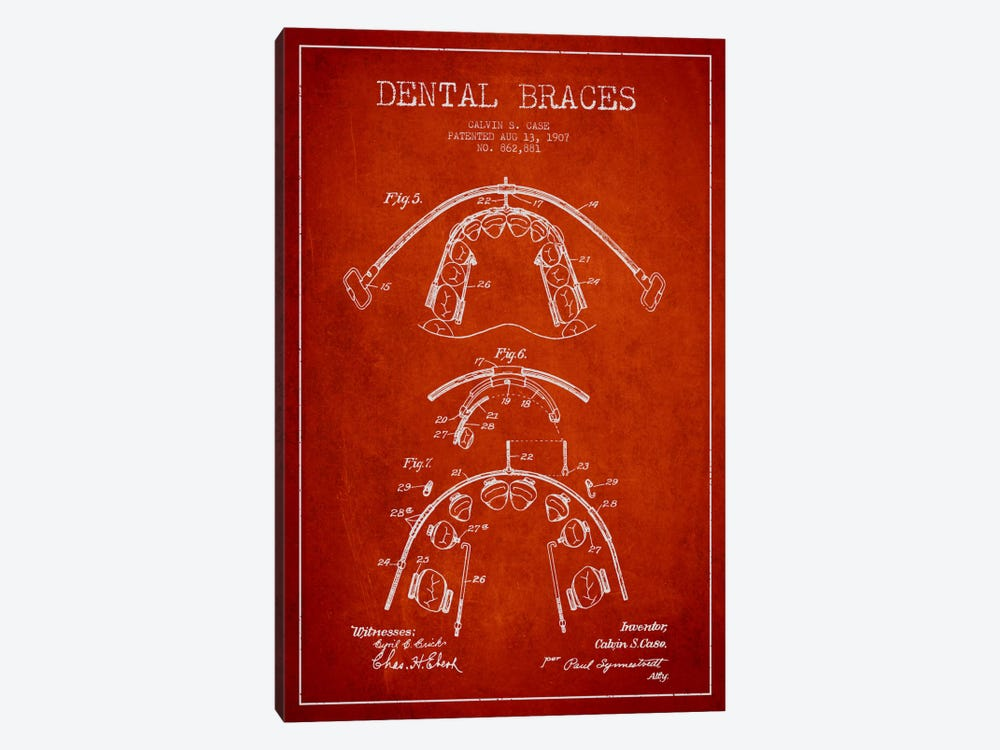 Dental Braces Red Patent Blueprint by Aged Pixel 1-piece Art Print