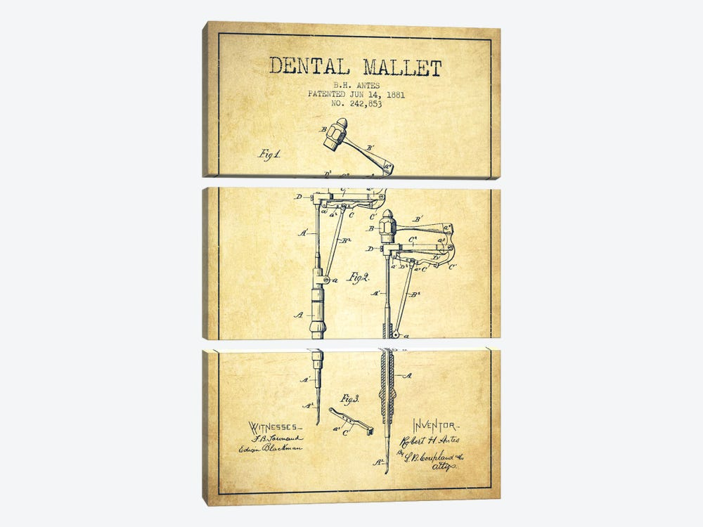 Dental Mallet Vintage Patent Blueprint 3-piece Art Print